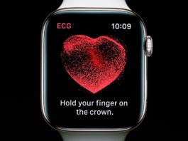 ECG d'Apple Watch